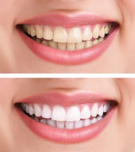 midland Teeth Whitening